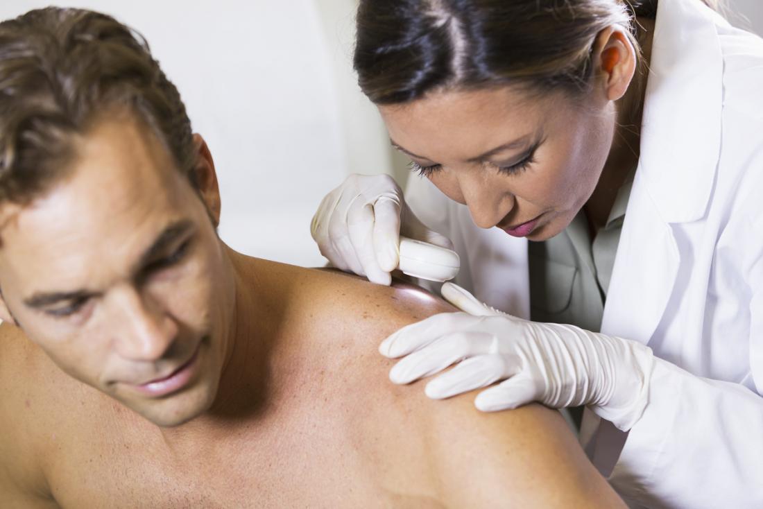 visualize use for cbd cream in canada - avoiding dermatologist visits